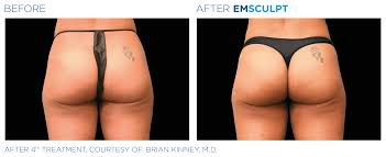 Emsculpt non-surgical butt lift before and after.